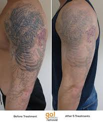 805 best tattoo removal in progress images on pinterest