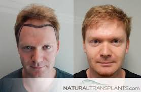 prescreened hair transplant physicians cost of hair restoration hair transplant before and after hair