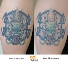 806 best tattoo removal in progress images on pinterest