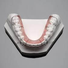 wrap around northstar orthodontic laboratory lab services retention wrap