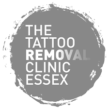 private tattoo removal essex uk whatclinic