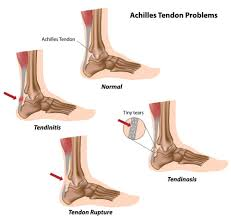 Ankle Anatomy Ligaments Ankle Jointclinic