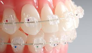 nickel free braces g h orthodontics