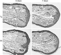 Tissue Renewal Regeneration And Repair Human Papillomavirus E6 E7 Oncogenes Promote Mouse Ear