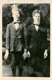 George Kelly Barnes In The Early 1900s Albino African American Brothers Were Stolen