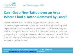 joel schlessinger md faq tattoo removal
