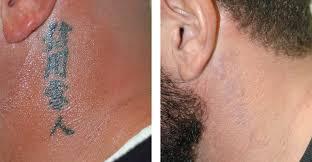 tattoo removal doctor shazia zubair