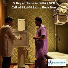 get x ray done at your home a boon for diseased elderly and busy