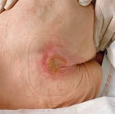 How Do You Get Bed Sores How To Prevent Bed Sores Pressure Sores Hubpages
