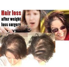Measures To Prevent Hair Loss Http Cindy Mymonat Com The Truth About Hair Loss After