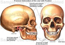 Human Jaw Bone Anatomy Fracture Dislocation Of The Jaw With Fixation Medical