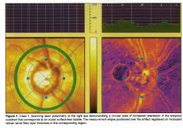 factors affecting image acquisition during scanning laser polarimetry