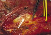 fußheberschwäche nerv klinik und poliklinik fuer neurochirurgie nervenverletzungen