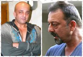 ranbir kapoor hair transplant you will be shocked to know that these celebs are actually bald