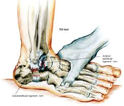 Anterior Distal Tibiofibular Ligament Acute Ankle Sprain Conservative Or Surgical Approach Efort