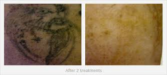 100 laser tattoo removal how many sessions laser tattoo