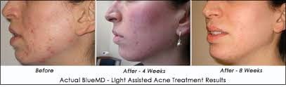 blu light therapy for acne bluemd for treating acne ahb