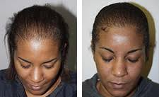 hair transplant for black women hair loss in african american and african descent
