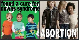 Syndrome Of A Down Meme - child model with down s syndrome meme 8 i am babs johnson