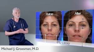 intense pulsed light therapy skin treatment intense pulsed light therapy ipl youtube