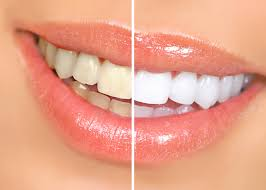 white and healthy teeth no more soda fruits are the secret