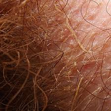red pubic hair pictures trichobacteriosis axillaris wikipedia
