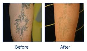 tattoo removal does it work laser tattoo removal spalding lincs