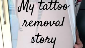 my tattoo removal story part two golly miss holly