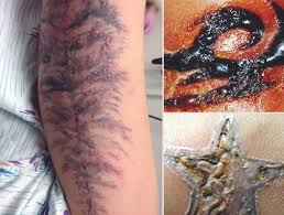 tattoo bacterial infection treatment tattoo infection 101 how do you know if your new ink is infected