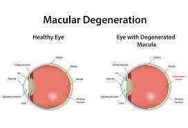 blue light and macular degeneration macular degeneration iris blue light filter and screen