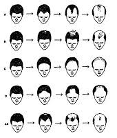 different types of receding hairlines race history evolution notes racial ethnic differences in male
