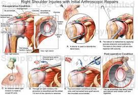 Human Shoulder Diagram Right Shoulder Injuries With Initial Arthroscopic Repairs