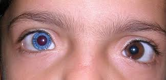 Sudden Blind Spot In Both Eyes 10 Strange Things That Can Happen To Your Eyes Listverse