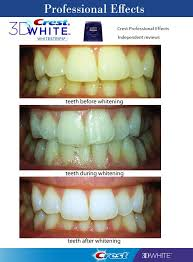 crest 3d white whitestrips with light review crest 3d white luxe professional effects 40 strips