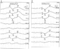 Hysterical Blindness Definition Evoked Potentials Overview Thoracic Key
