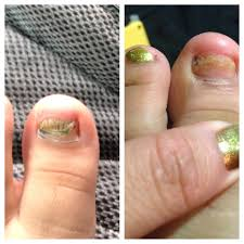 i u0027ve read about apple cider vinegar for toe nail fungus truthful