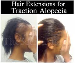 Sticker Hair Extensions by Pennsylvania Hair Loss Solutions Global Hair Health Growth Expert