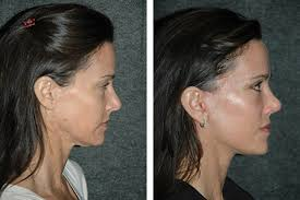 hairstyles that cover face lift scars short scar facelift new york short scar facelift specialist