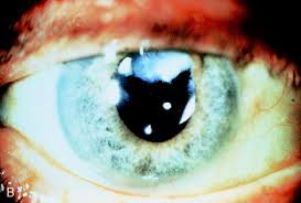 Blindness After Cataract Surgery Nd Yag Laser In Managing Post Cataract Surgery Complications