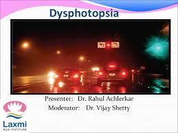 light streaks after cataract surgery dysphotopsia 140627070144 phpapp02 thumbnail 4 jpg cb 1403852681