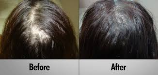 low level light therapy hair shining a light on laser light therapy