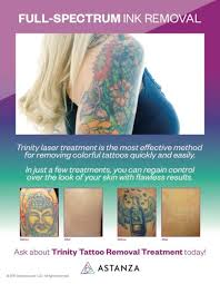 astanza trinity tattoo removal poster