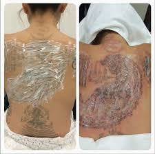 tracking maia lee u0027s laser tattoo removal journey at eha clinic