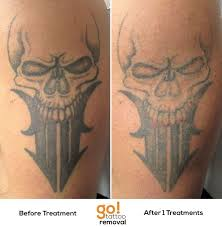 53 best vanish laser tattoo removal progression pictures images on