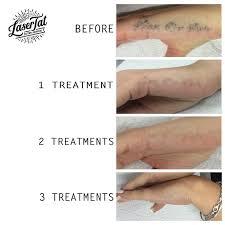 black diamond tattoo amanda tattoo removal