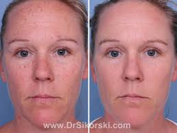 intense pulsed light therapy orange county intense pulse light ipl before and after photos