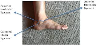 Ankle Anatomy Ligaments How To Prevent Ankle Sprains In Bouldering U2013 The Climbing Doctor