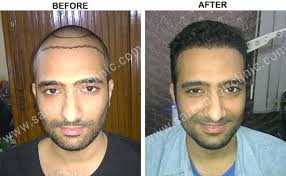 hair bonding hair bonding non surgical way of hair restoration at low cost dubai