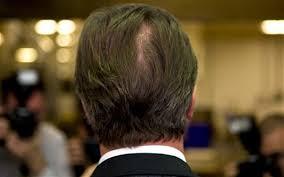 bald spor hair styles waistlines bald spots and hair dye secrets of sexy politician