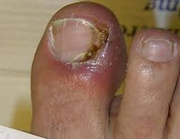 nail disease wikipedia